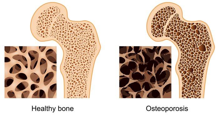 21++ Swedish bone health and osteoporosis ideas in 2021